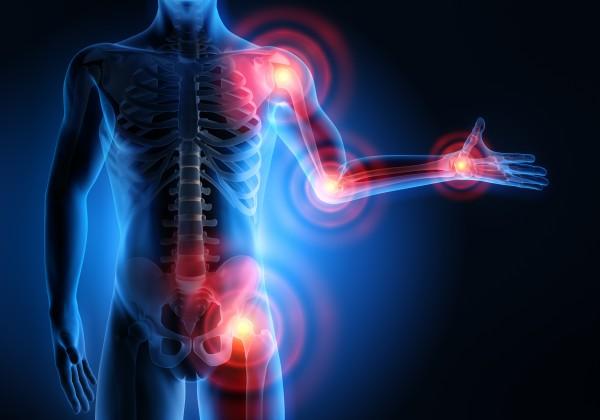 Forschungsgruppe Dr. Feil » Kompetenz ist unsere Stärke » Osteochondrose